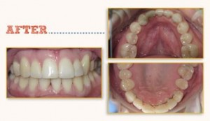 Six Month Smiles Before After