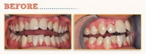 [Clinical Article] Lower Incisor Extraction with Six Month Smiles®