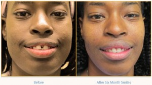 Teeth Straightening. The Power of Six Month Smiles.