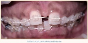 During Six Month Smiles with Clear Braces