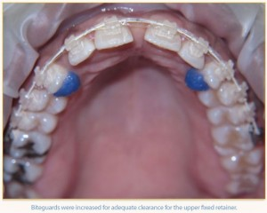Biteguards with Six Month Smiles