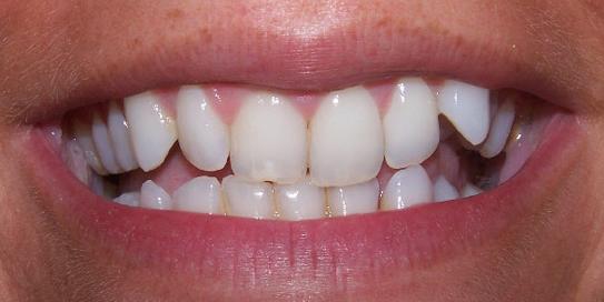 Six Month Smiles, adult braces