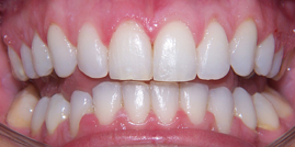 Six Month Smiles, adult braces