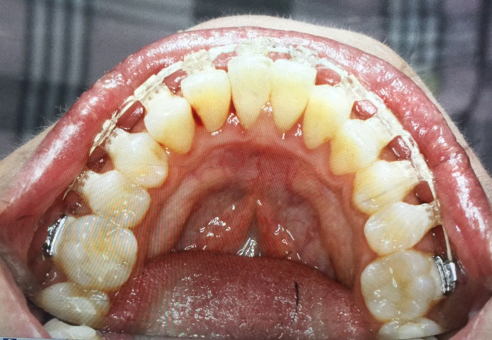 Straight Teeth with Six Month Smiles Clear Braces