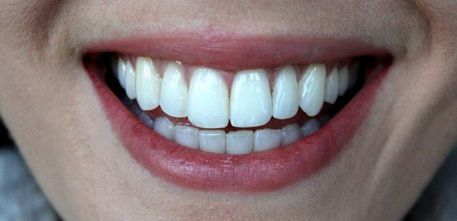 6-Month-Smiles-After-Photos-5.jpg