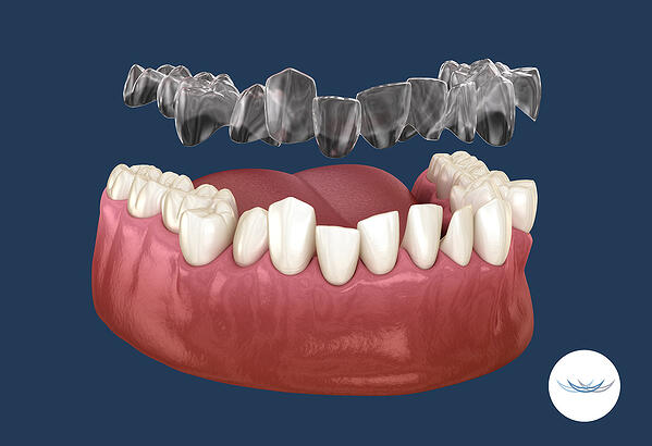 Aligners and tooth movement