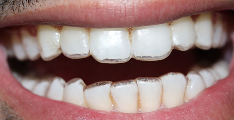 Hussain_during_with aligners compressed