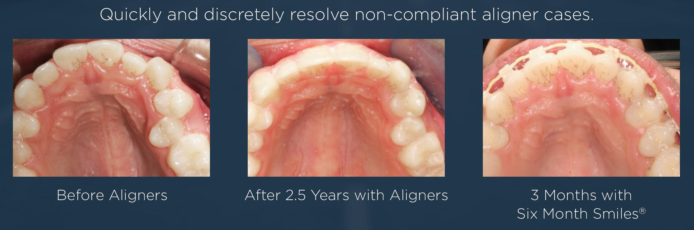 Six Month Smiles vs Invisalign or Aligners