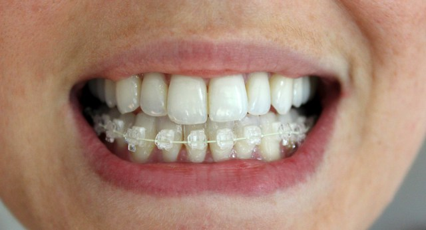 Six-Month-Smiles-Progress-Blog-11.jpg