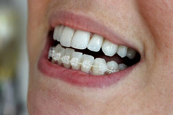 Six Month Smiles Clear Braces