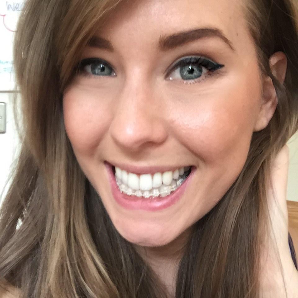 Six-Month-Smiles-Progress-Blog-15.jpg