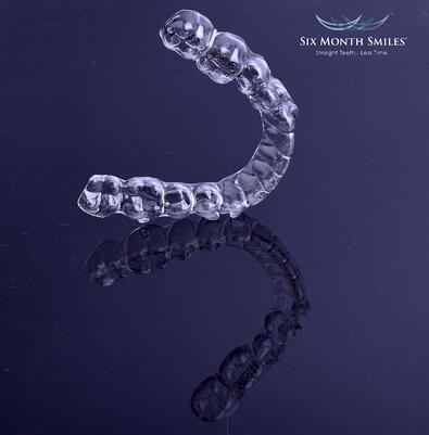 Aligners styled