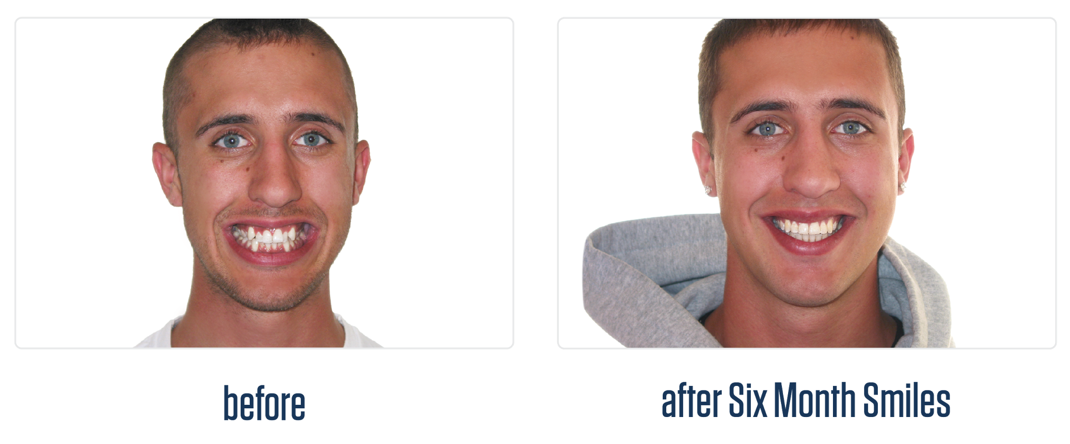 before and after six month smiles clear braces