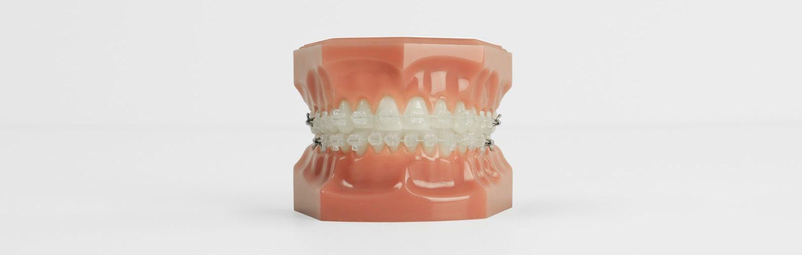 braces_image.jpg