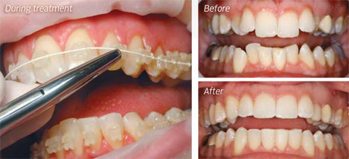 clear braces  minimally invasive dentistry