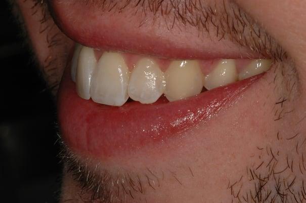 matt after six month smiles
