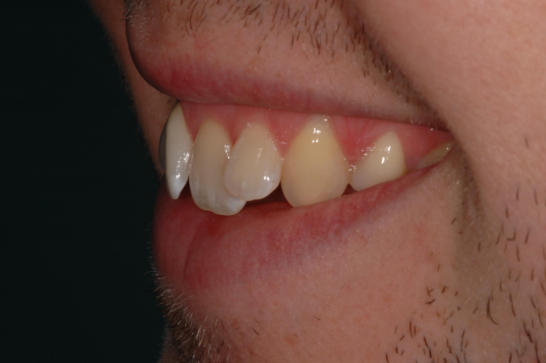matt before six month smiles