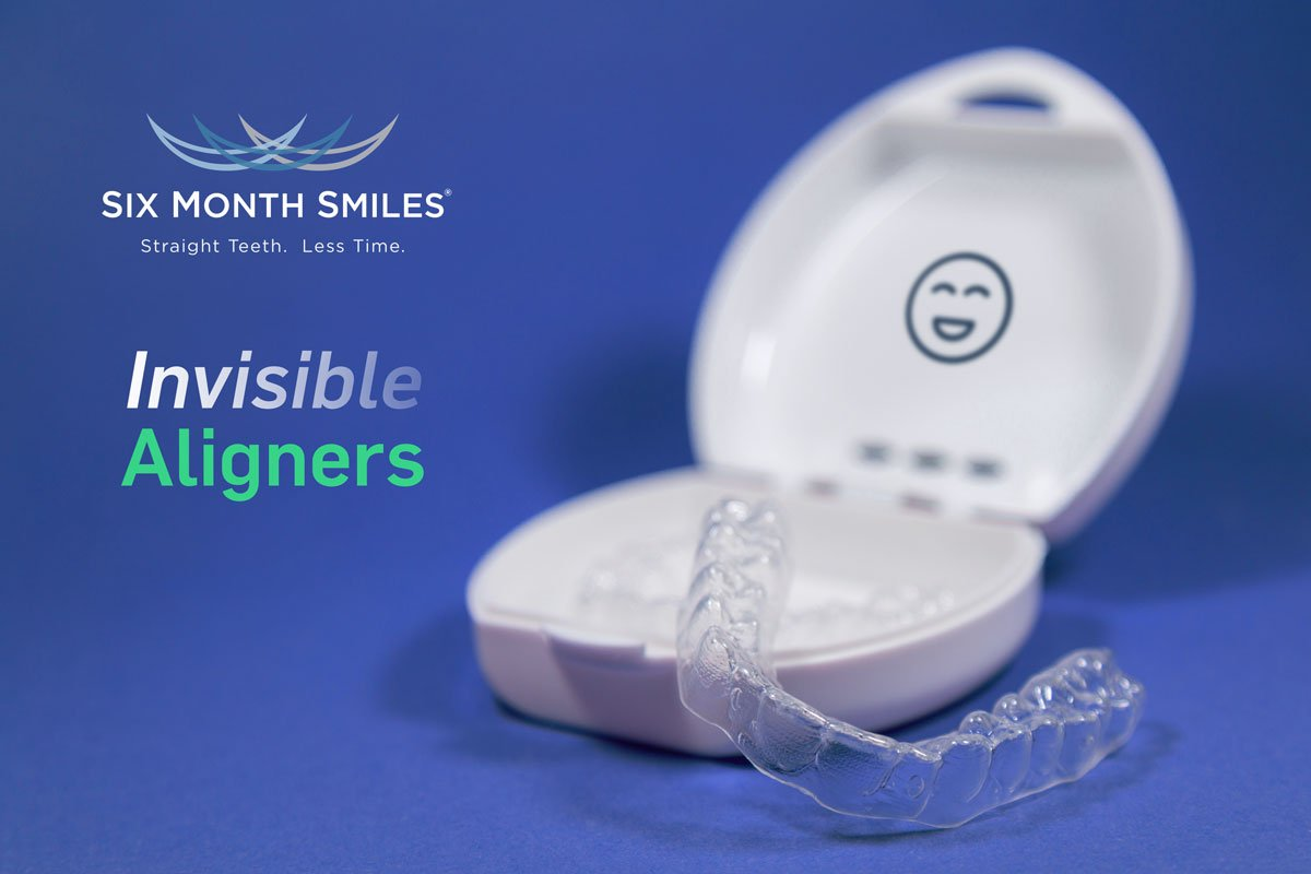 Introducing 6MS Invisible Aligners and Mixed Appliances