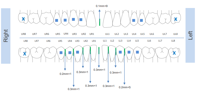 What are Aligner Attachments and Why Do I Need Them?
