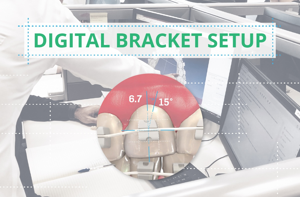 Digital Bracket Setup Now Included with Every Case