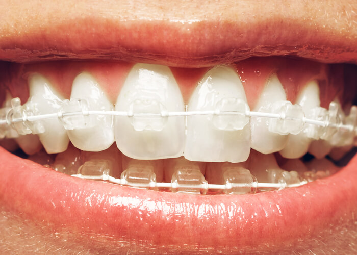 5 Ways to Keep Clear Braces Sparkling White