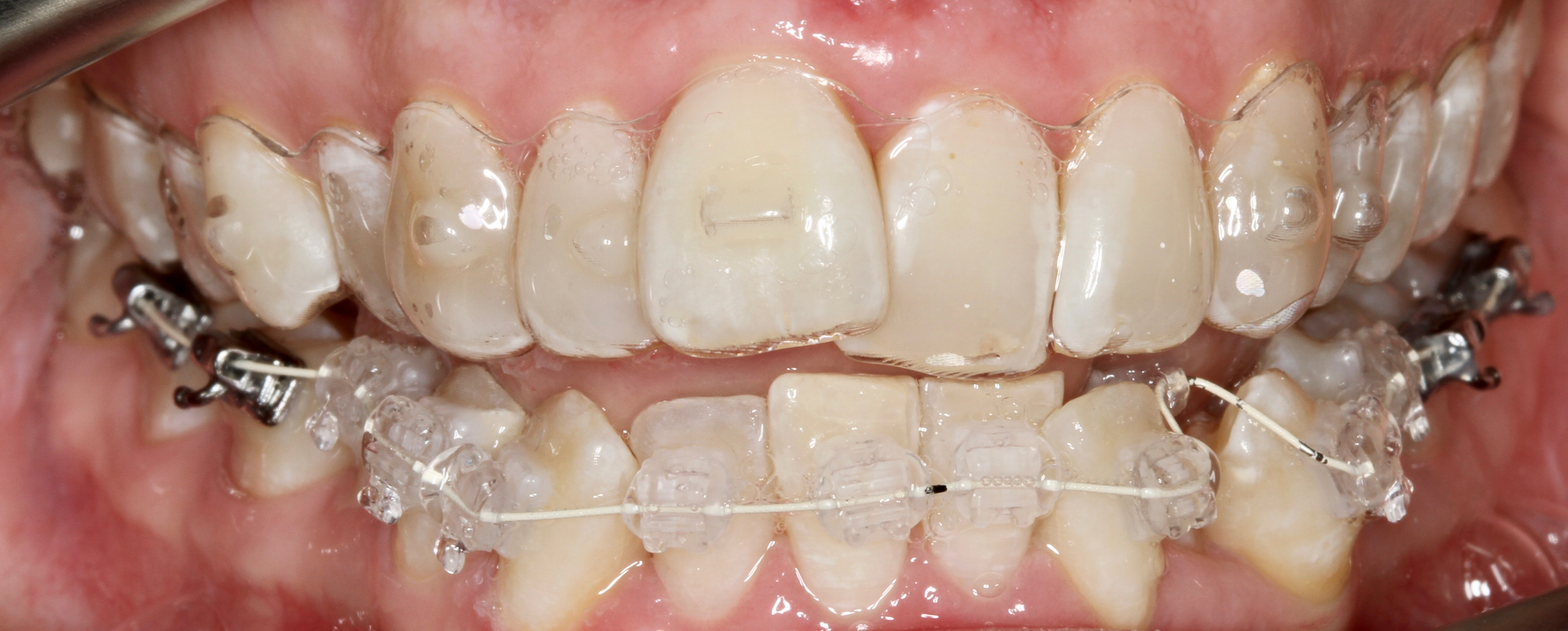Clinical Case Review & Patient Testimonial: Aligner Mixed Therapy Case